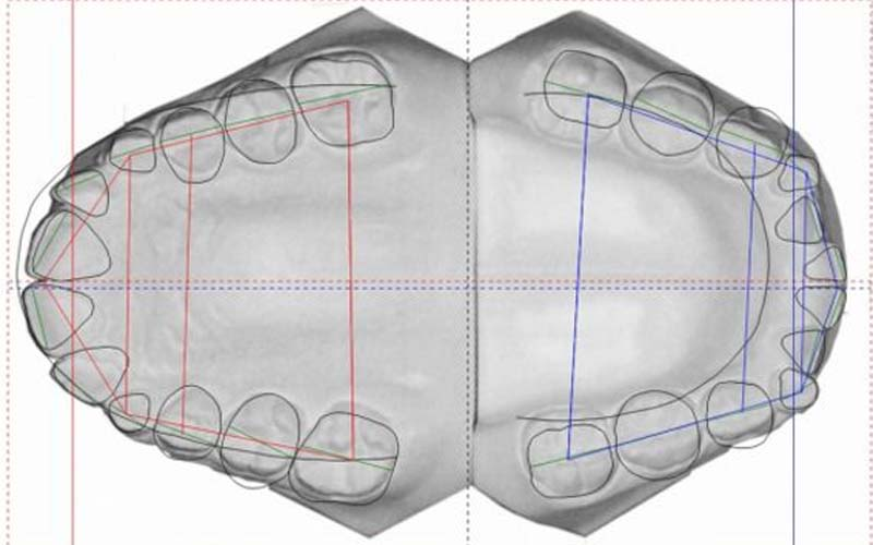 impronta denti digitale