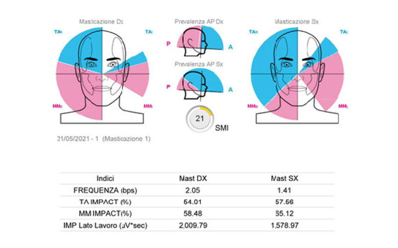 moduli ortodonzia digitale